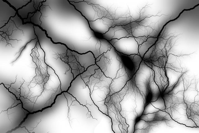 脳梗塞に多い後遺症「片麻痺」が起こる理由